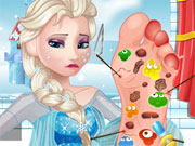 Play Elsa Foot Doctor 2