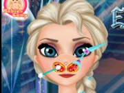 Play Elsa Nose Doctor
