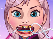 Play Frozen Tooth Problems